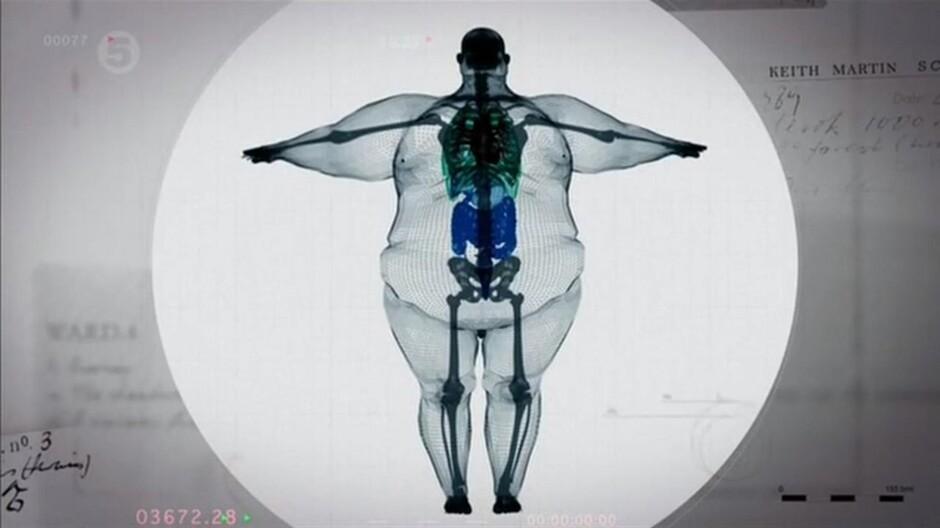 Картинки по запросу рентген человека с широкой костью