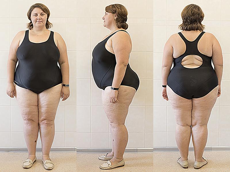 истории похудения фото